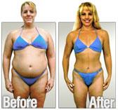 Obesity Treatment | Fat Loss u0026amp; Fat Burning Supplements